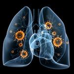 FDA、pembrolizumabを非小細胞肺がんに承認のイメージ