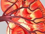 慢性腎臓病の治療に既存薬の可能性のイメージ