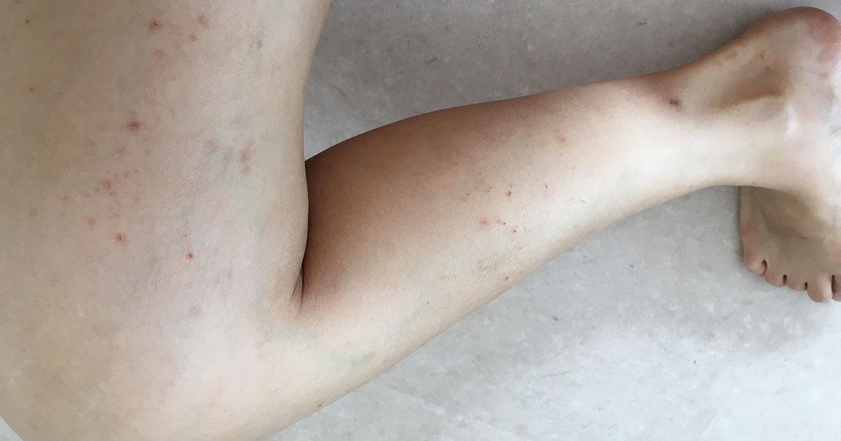 皮膚 発疹 コロナ