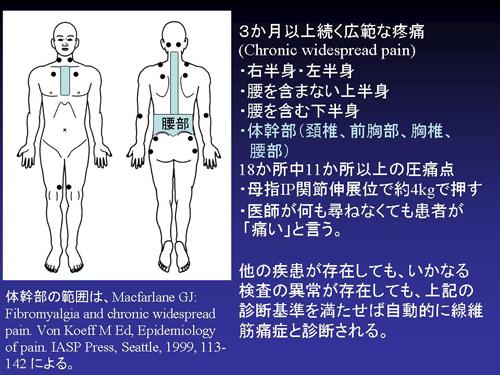 痛 前兆 筋 線維 症